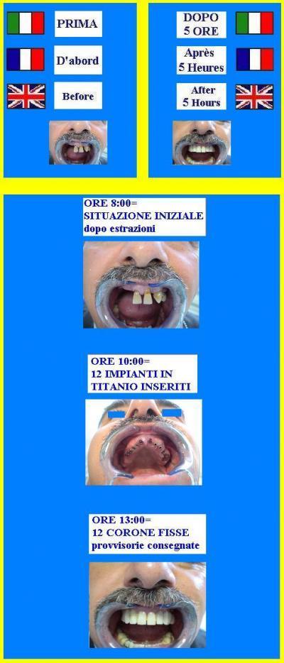 DENTISTA-MILANO-IMPLANTOLOGIA-PREZZI-A-CONFRONTO-DOMANDE-RISPOSTE-DENTALSCAN-GRATIS.jpg